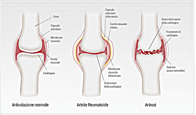 artrosi